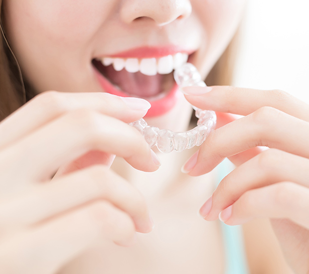 Calabasas Alternative to Braces for Teens