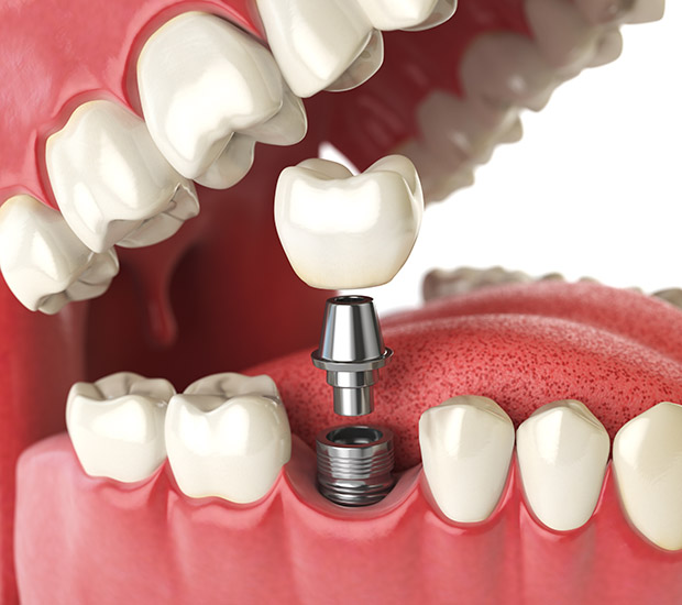 Calabasas Will I Need a Bone Graft for Dental Implants