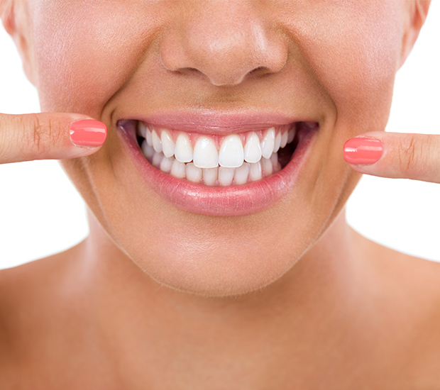 Calabasas What Is Gum Contouring & Reshaping